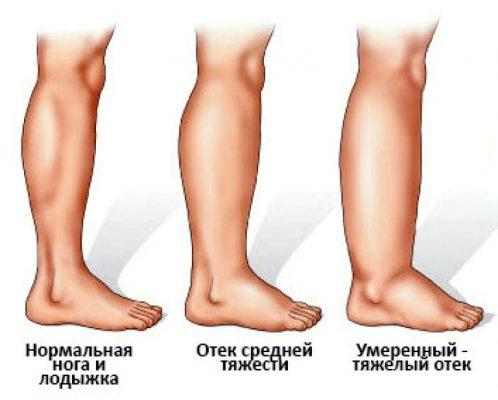 Отек ног при онкологии развивается как результат патологического водного обмена в тканях нижних конечностей