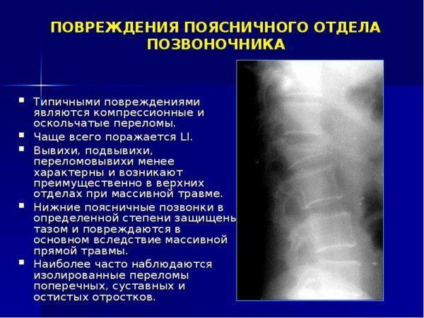 Виды травм поясничного отдела позвоночника