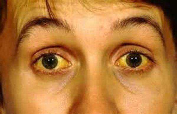 При гепатит желтеют кожа, белки глаз и ногти