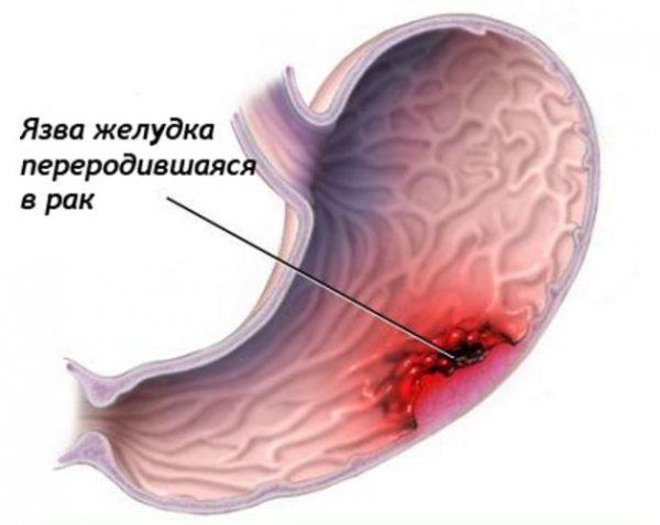 Рак желудка - частое следствие язвы