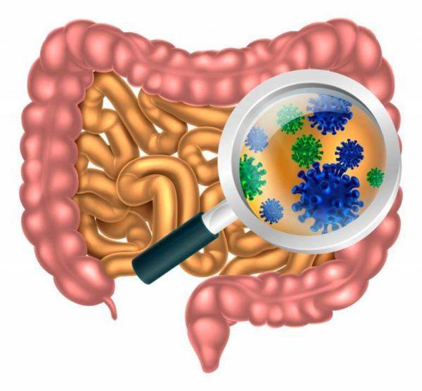 Кишечные инфекции могут вызывать налет