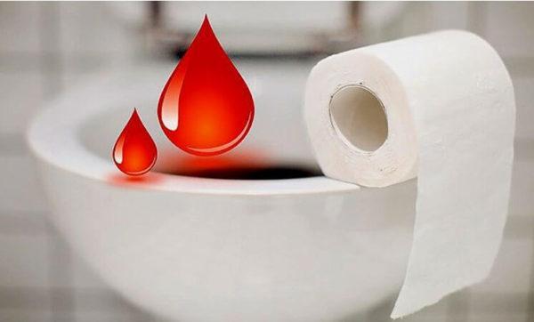 Кровь в кале свидетельствует о явных патологиях кишечника