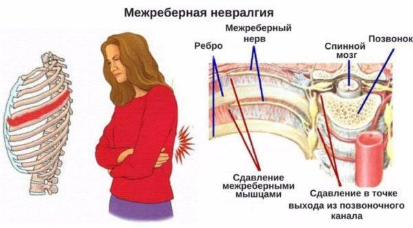 Межреберная невралгия может развиться из-за частых стрессов