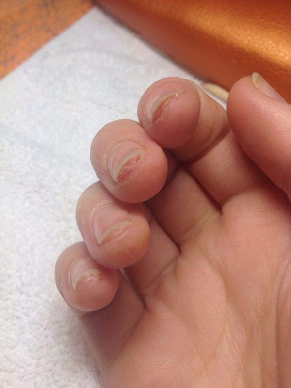 Яйца могут скапливаться под ногтями