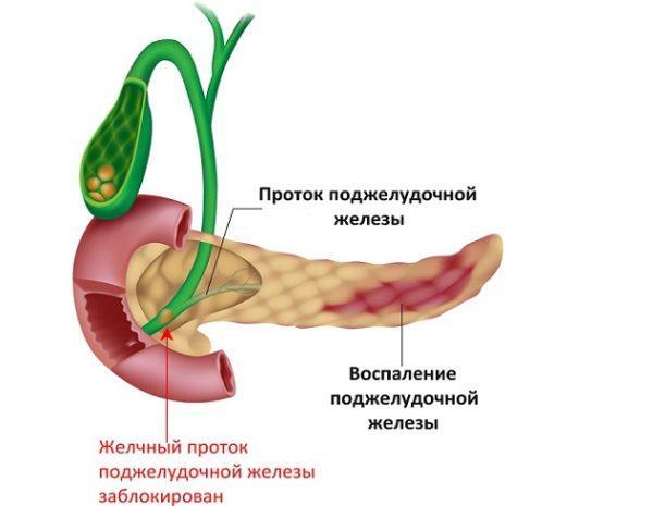 При панкреатите обязательно назначается МРТ