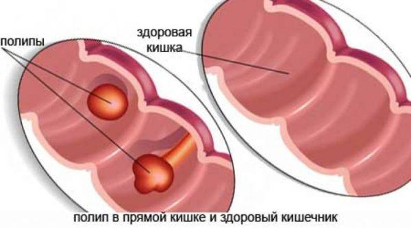 Полипоз