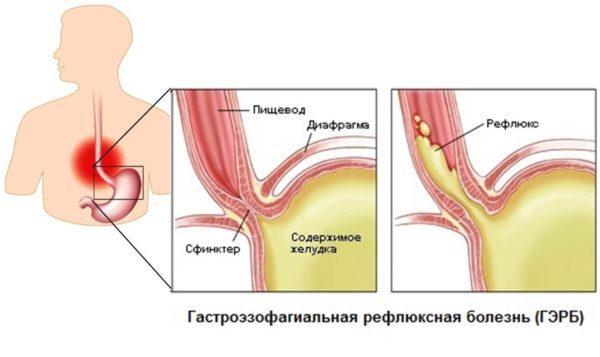 Заброс кислоты из желудка обратно в пищевод