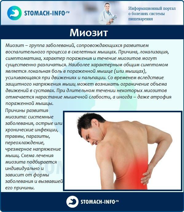 Миозит - одна из причин болей в боку со стороны спины