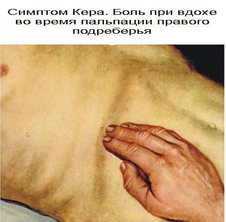 Симптом Кера