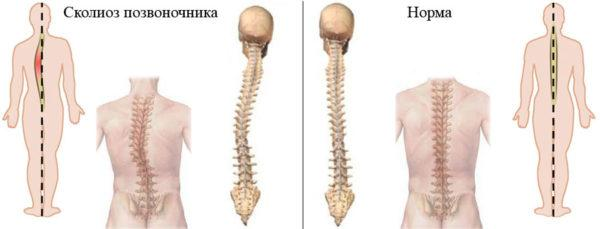 Сколиоз - виновник периодических болей с левой стороны со спины