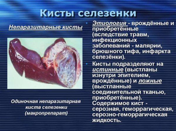 С помощью томографии удается выявить кисты в органах брюшной полости