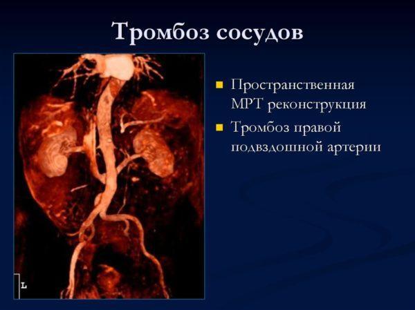 МРТ, проведенное с контрастным веществом, позволяет определить патологии сосудов, артерий и вен