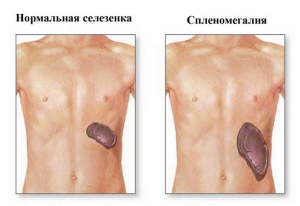 Спленомегалия - патологическое увеличение селезенки на фоне другого заболевания