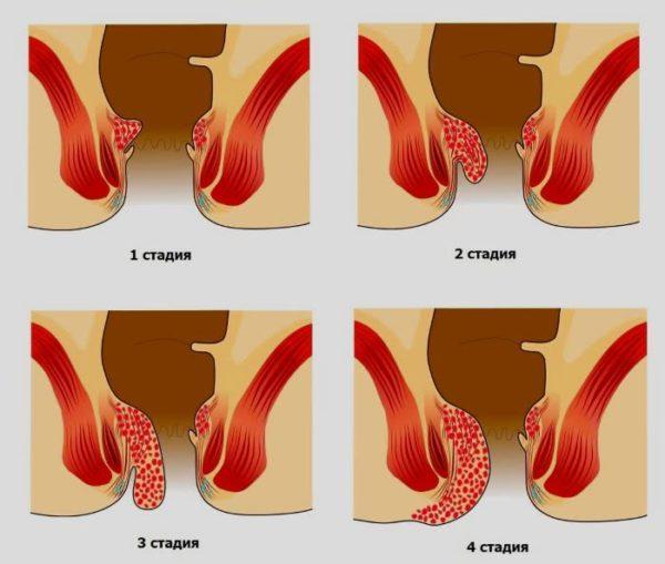 Препарат эффективен на ранних стадиях (1 и 2)