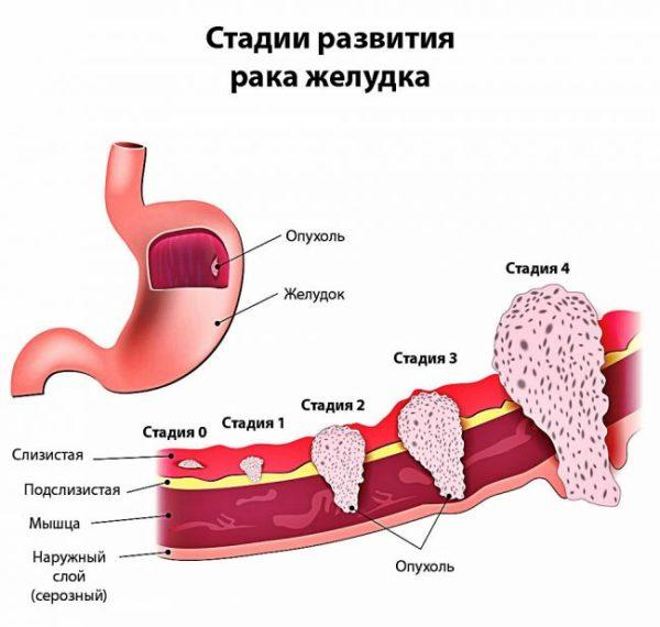 Рак желудка и его стадии развитияРак желудка и его стадии развития