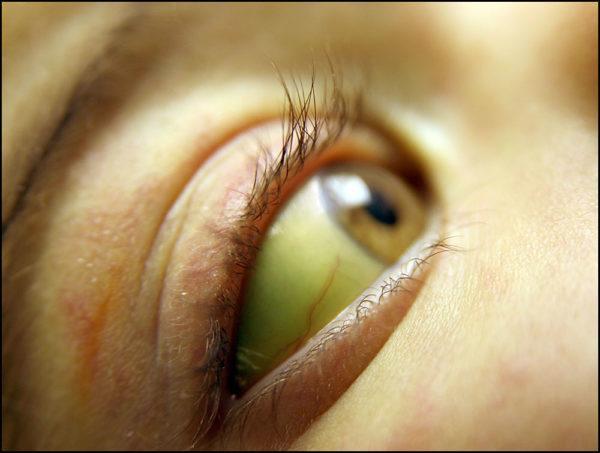 Пожелтение белков глаз еще один признак цирроза