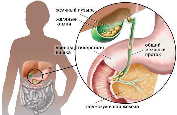 Калькулезный холецистит – это особая форма холецистита, которая отличается присутствием камней (конкрементов) в желчном пузыре