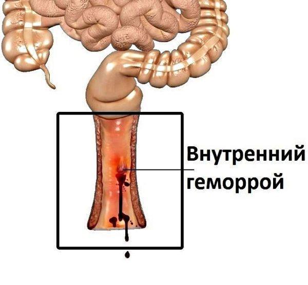 Внутренний геморрой - первая стадия заболевания
