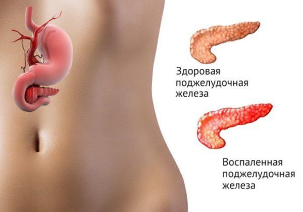Воспаление поджелудочной железы из-за нарушения оттока желчи
