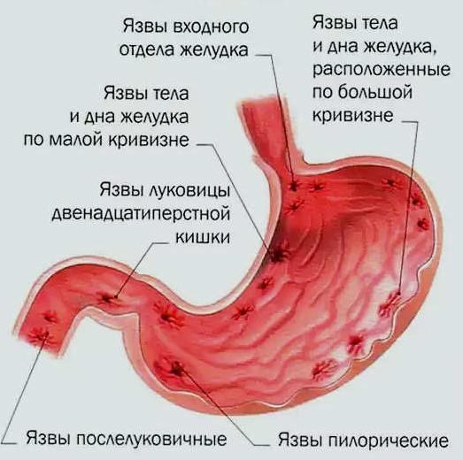 Наиболее распространенные варианты расположения желудочной язвы