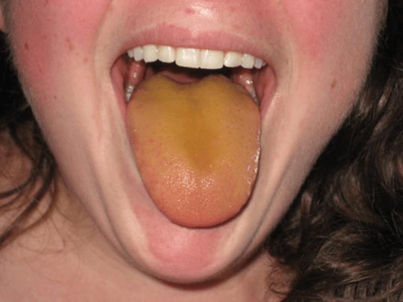 Желтоватый налет на языке у взрослого