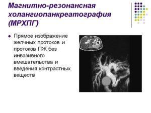 МРПХГ (Магнитно-резонансная панкреатохолангиография)