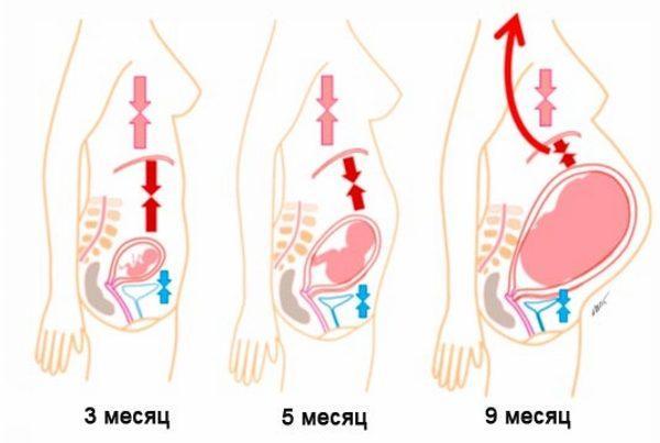 При беременности изжога вызывается увеличением матки и сдавливанием желудка