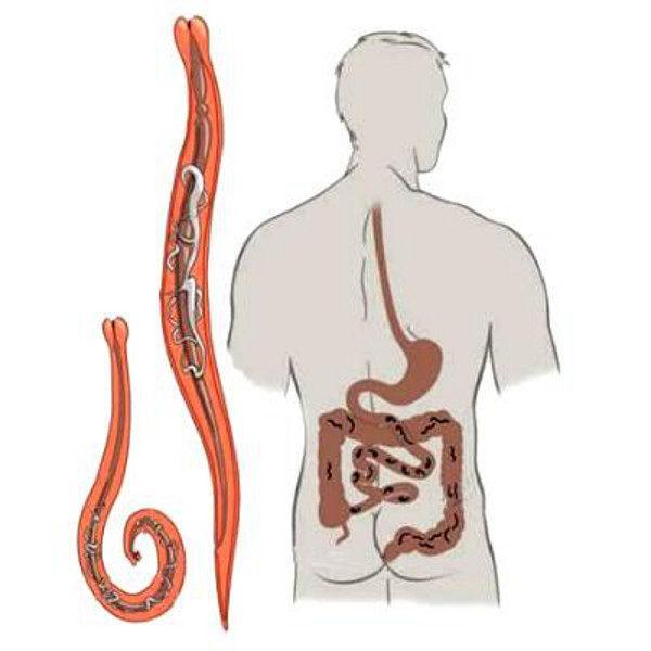 Глисты замедляют перистальтику кишечника