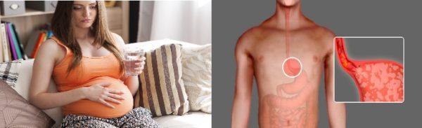 Изжога - частое явление при токсикозах у беременных и заболеваниях пищеварительной системы