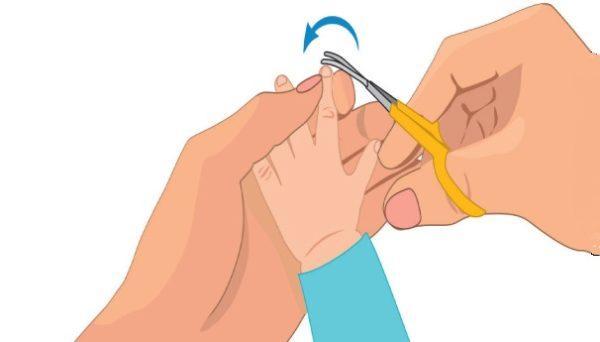 Регулярно нужно обрезать ногти ребенку, так как под ними могут скапливаться яйца остриц