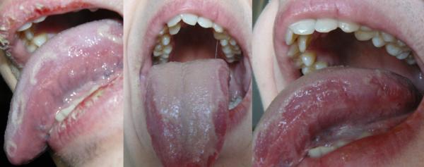 Сильный налет на языке и отпечатки зубов