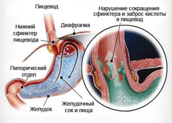 Изжога возникает в результате нарушения сокращения сфинктера и заброса желудочной кислоты в пищевод