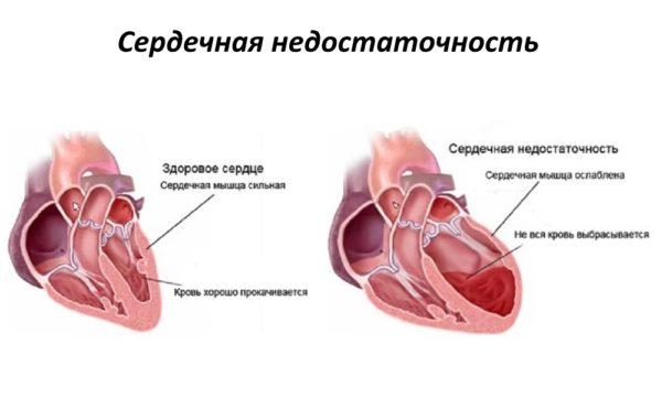 При сердечной недостаточности диагностику ЭГДС проводить нельзя