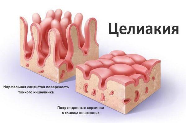 Ворсинки тонкого кишечника в нормальном состоянии и при целиакии