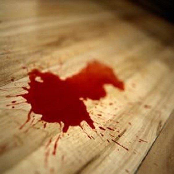 Алая кровь в рвоте свидетельствует о недавно открывшемся кровотечении