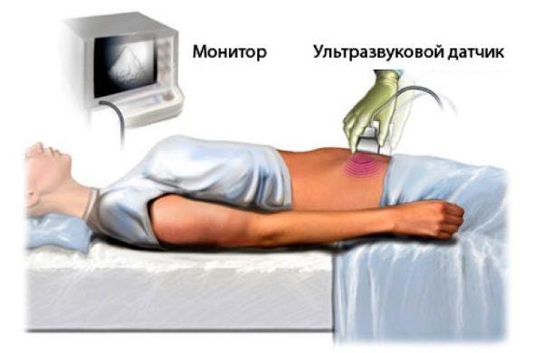 Алгоритм подготовки пациента к УЗИ
