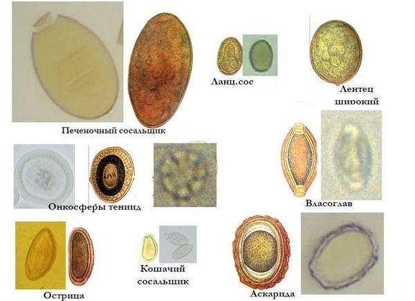 Анализ на яйцеглист позволяет определить наличие и вид гельминтов в организме человека
