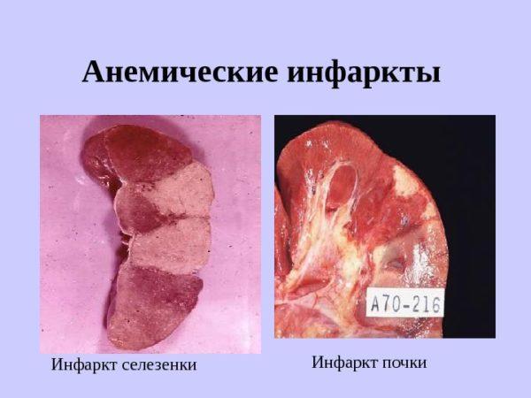 Анемический инфаркт селезенки