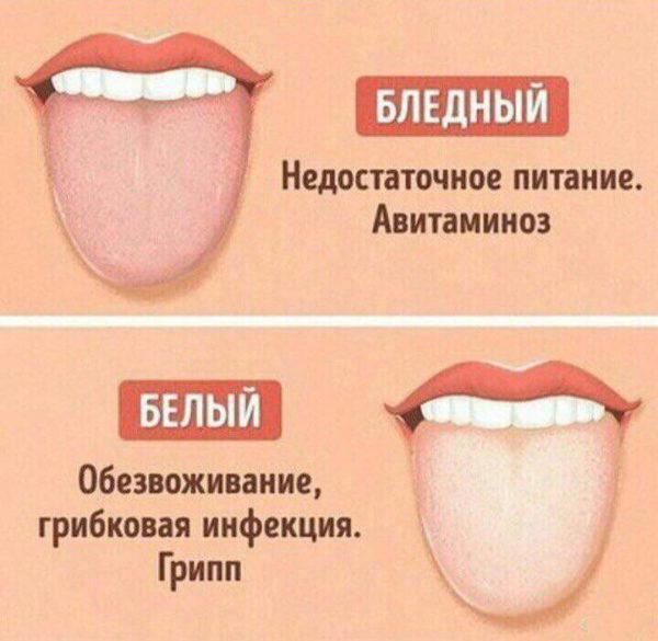 Белый или бледный налет на языке