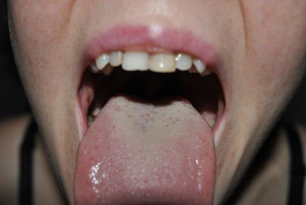 Белый налет на языке свидетельствует о проблемах с кишечником