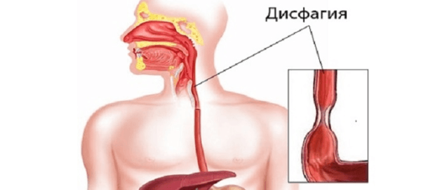 Затруднение прохождения пищи при глотании - дисфагия