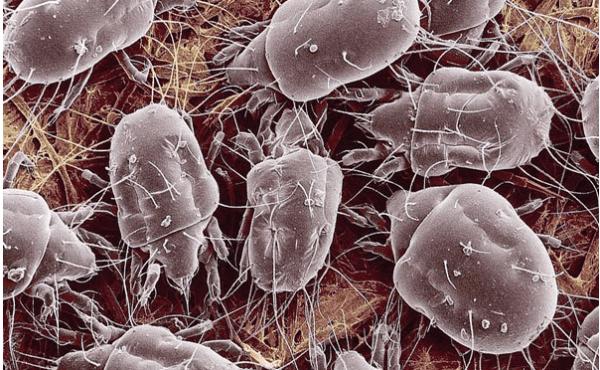 Лямблии активно размножаются в кишечнике и оказывают раздражающее действие на слизистую оболочку