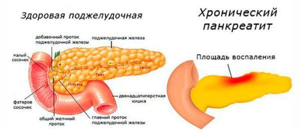 Чаще всего рвота с желчью беспокоит при болезнях ЖКТ, например, панкреатите