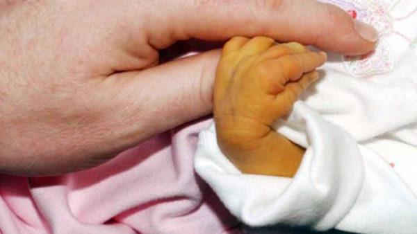 Чаще всего сладж-синдром развивается на фоне физиологической желтушки новорожденных