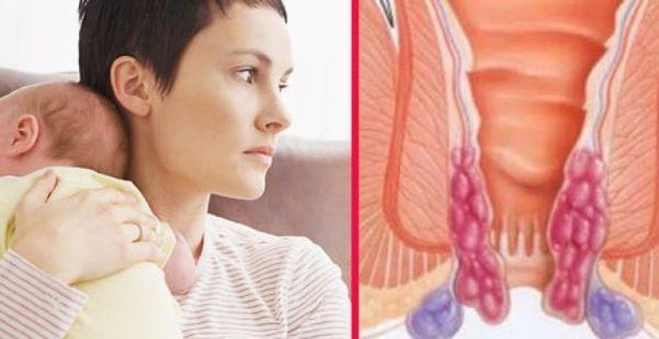 Чем лечить геморрой при грудном вскармливании