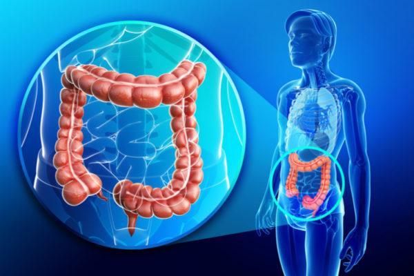 Чем лечить воспаление кишечника?