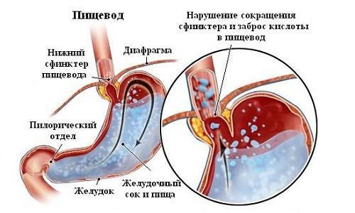 Что происходит в желудке при сокращении сфинктера и забросе кислоты в пищевод