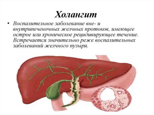 Что такое холангит