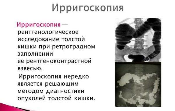 Что такое ирригоскопия кишечника