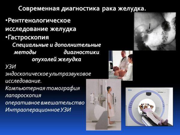 Диагностические методы выявления рака желудка